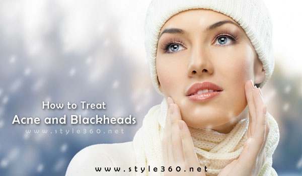 Acne and Blackheads Treatment