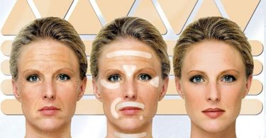 Botox Resistance - Best Botox in Charlotte NC