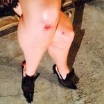 Angel Candice Scrapped Knee During Fashion Week