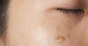 Get Rid Of Black Spots On Face Fast