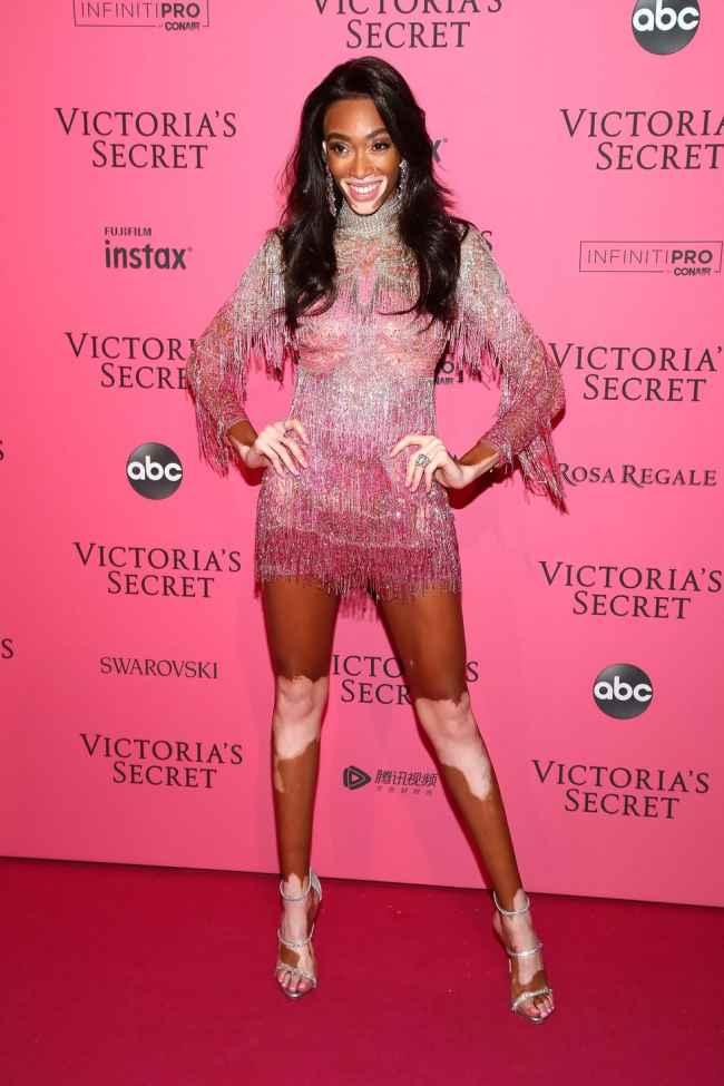 Winnie Harlow at Victoria Secret Fashion Show